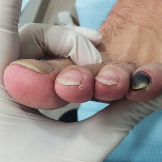 Podología geriátrica cuidados del pie - MG Podologia