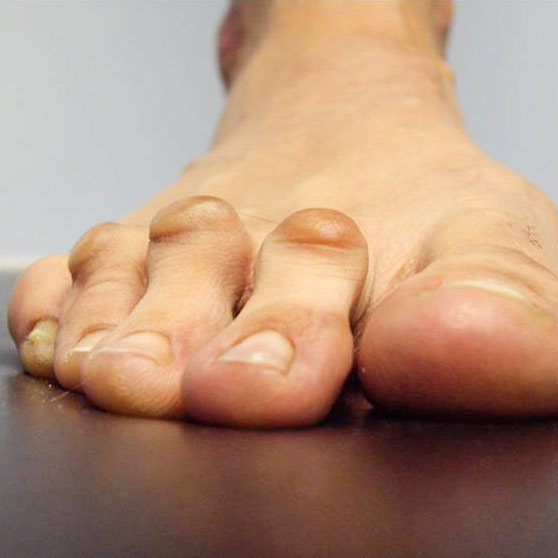 Los dedos en Garra o en martillo son una deformación de las articulaciones de los dedos de los pies.