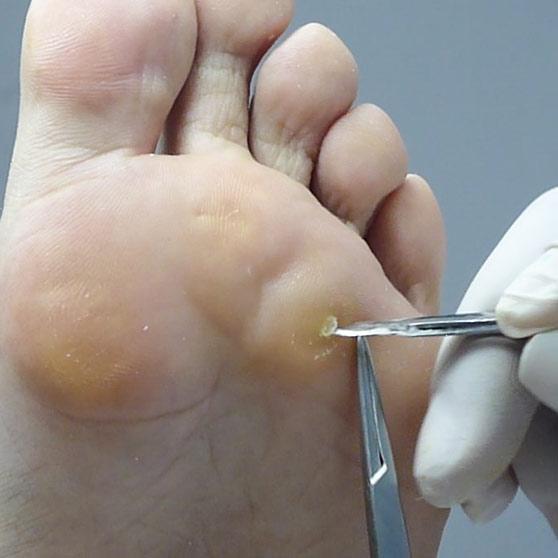 Proliferaciones córneas en la piel provocada por la presión de superficies rígidas.